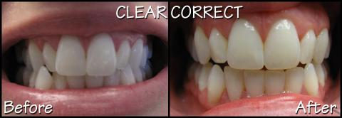 Clear Correct before/after