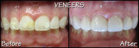 Porcelain Veneers before/after